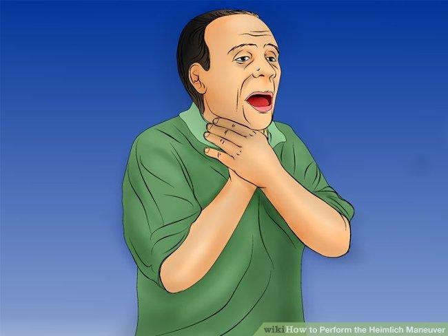 Kết quả hình ảnh cho phương pháp Heimlich