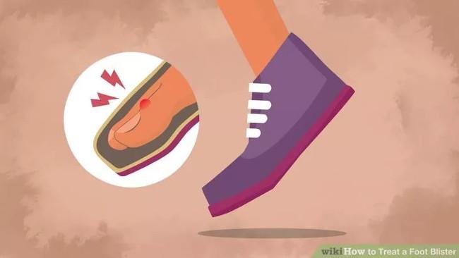 Cách khắc phục phồng rộp chân