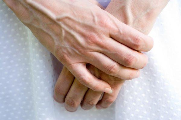Màu sắc tĩnh mạch bị nhiều yếu tố chi phối