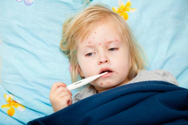 Tanda-tanda syok dengue
