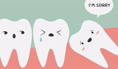 Mọc ngu lung tung và gây đau đớn mà chúng vẫn có tên là răng khôn là tại sao nhỉ?