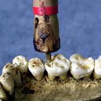 Bí ẩn những vụ răng tự phát nổ trong miệng có thật trong lịch sử