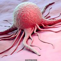 Đối phó với ung thư có thể trở nên dễ dàng hơn với các hạt nano tự chỉnh nhiệt