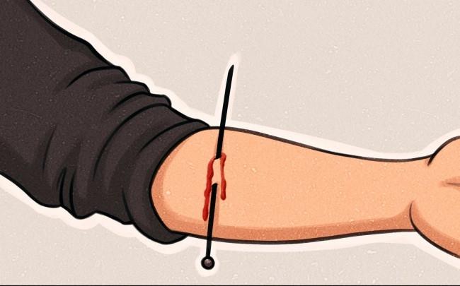 Đâm kim xuyên qua da