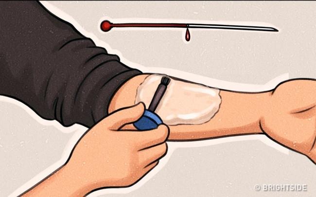 Lật tẩy màn ảo thuật đâm kim xuyên qua da