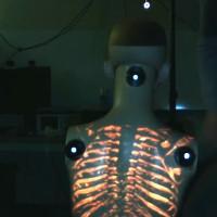 """ProjectDR cho phép các bác sĩ """"nhìn xuyên thấu"""" cơ thể bệnh nhân"""