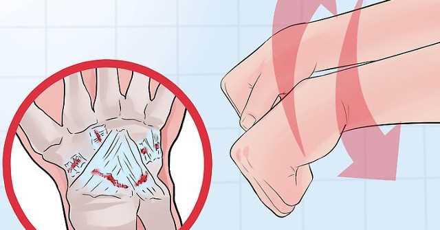 Phân biệt giữa bong gân cổ tay và gãy xương cổ tay