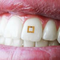 Cảm biến gắn trên răng theo dõi những gì bạn ăn vào