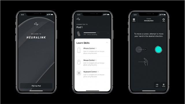 Ứng dụng trên iPhone của Neuralink