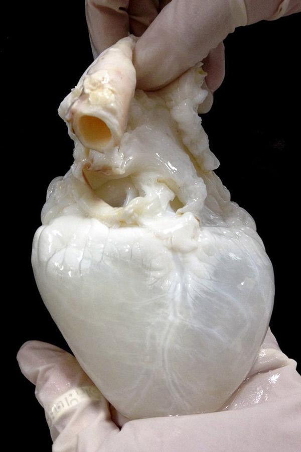 Quả tim màu trắng
