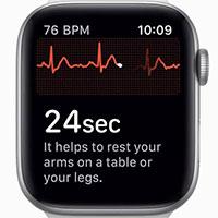 Cách kích hoạt tính năng ECG trên Apple Watch