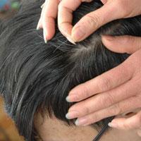 Nguy hại khôn lường từ việc nhổ tóc trắng
