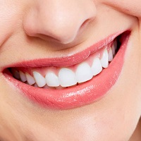 Cách làm trắng răng bị vàng tại nhà nhanh và hiệu quả nhất