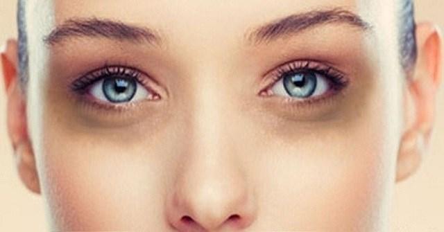 Mắt thâm quầng là biểu hiện của bệnh gì? Trị thâm mắt tại nhà có được không?