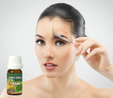 Sử dụng tinh dầu tràm để trị mụn