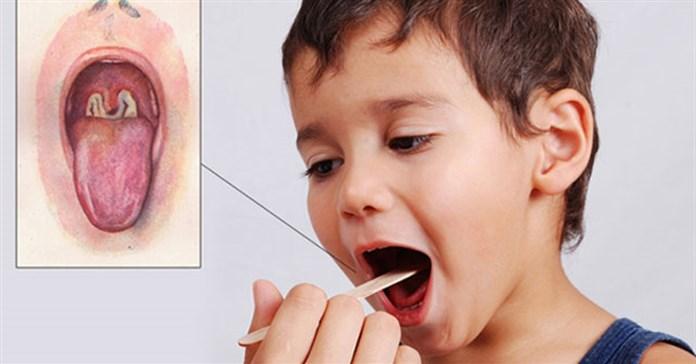 Bệnh bạch hầu nguy hiểm như thế nào?