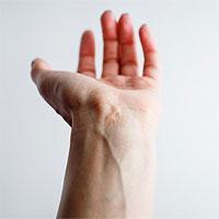 Góc tiến hóa: Con người đang phát triển 'thêm' động mạch ở cẳng tay